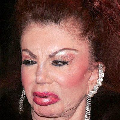 Silvester Stanolle'nin annesi Jackie Stallone kaşlarını kaldırttırdı, yanaklarını dolgunlaştırdı.